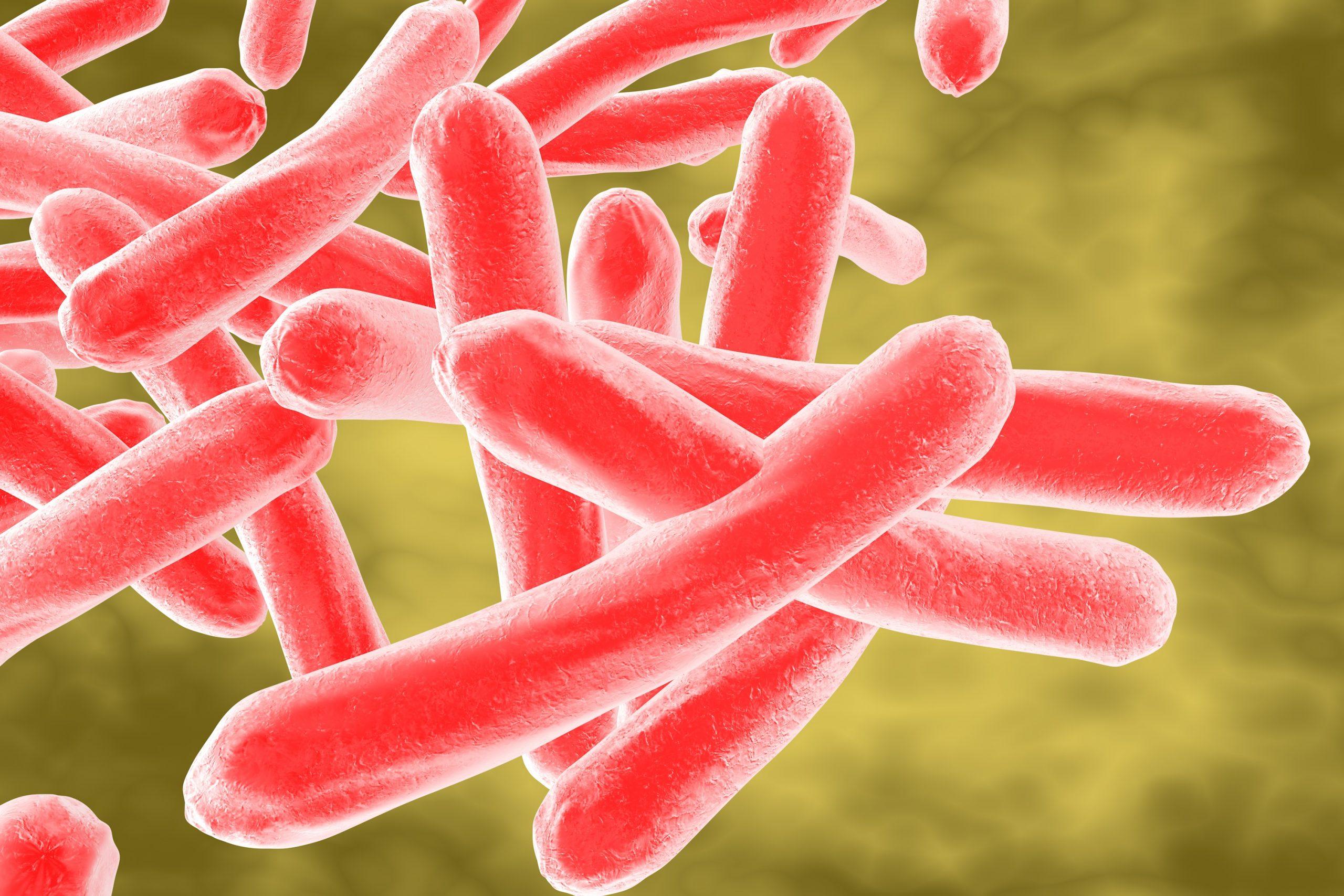 tuberculosis - https://depositphotos.com/78119374/stock-photo-mycobacterium-tuberculosis.html